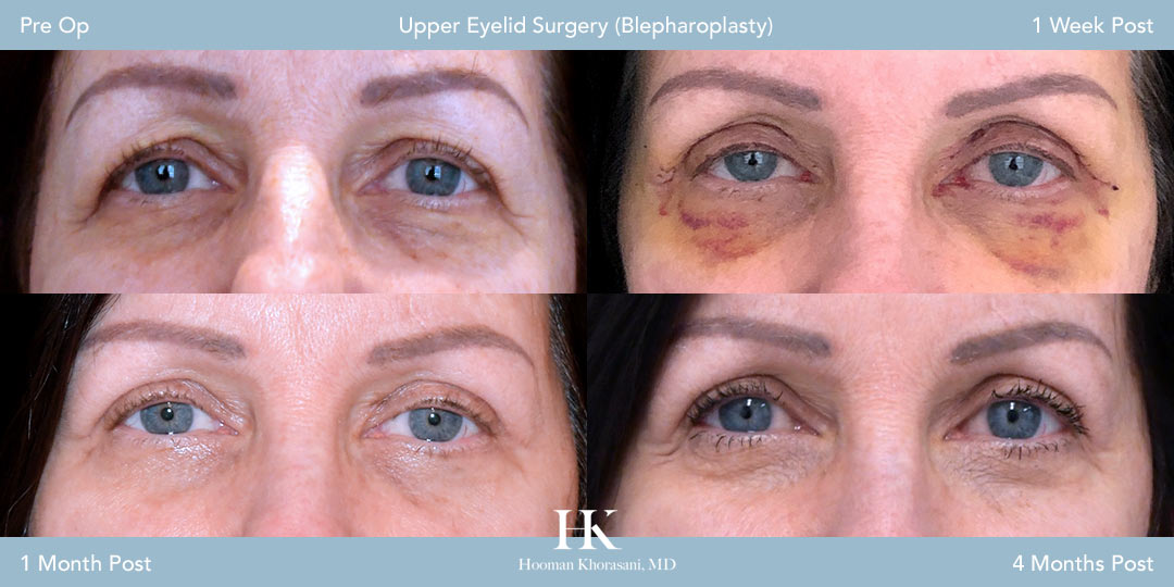 Eyelid Surgery Recovery Time Photo