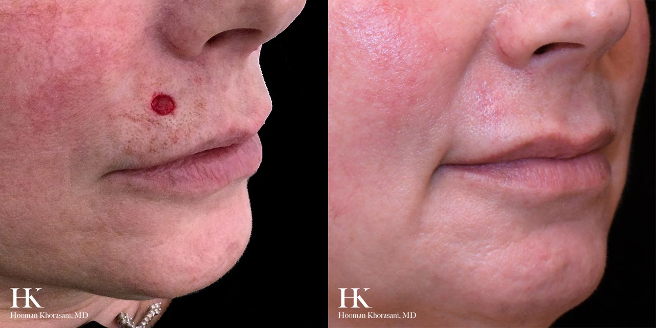 Mohs Micrographic Surgery & Reconstruction of the Lip & Chin by Dr. Hooman Khorasani