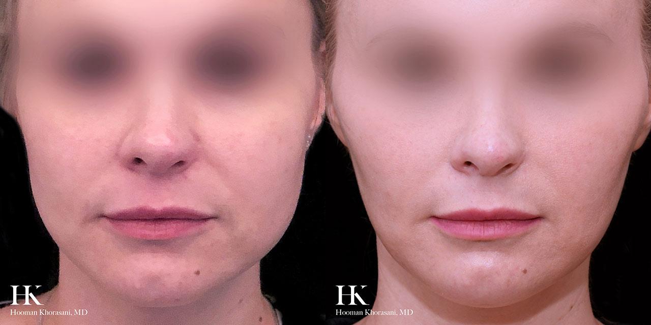 Cheek and Jawline Contouring by Dr. Hooman Khorasani