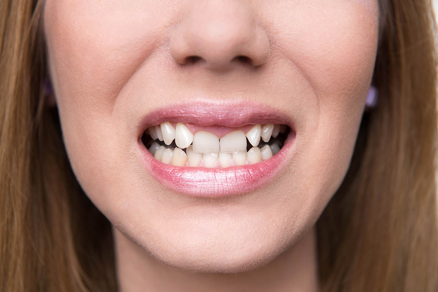 Teeth that can be improved with cosmetic dentistry