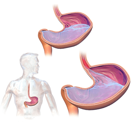 stomach acid flows back up the esophagus with gerd