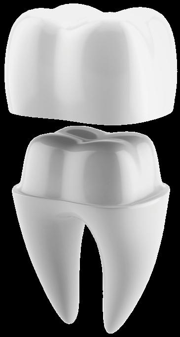 tooth split