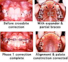 Palate Constriction & Crowding [Before and After Photos]