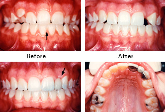 Missing Lateral Incisor [Before and After Photos]