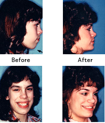 Excess Vertical Jaw Growth [Before and After Photos]