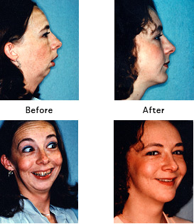 Severe Jaw / Chin Deficiency [Before and After Photos]