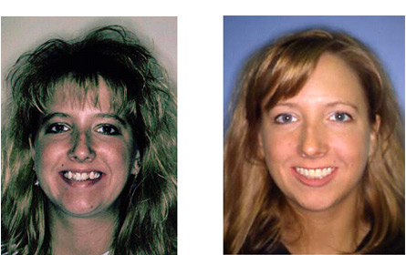 MSTD [Before and After teeth photos]