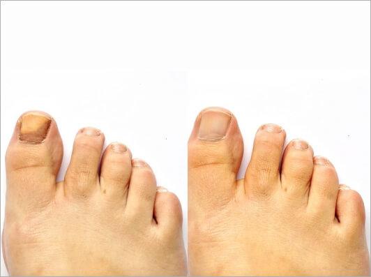 toe nail fungus treatment
