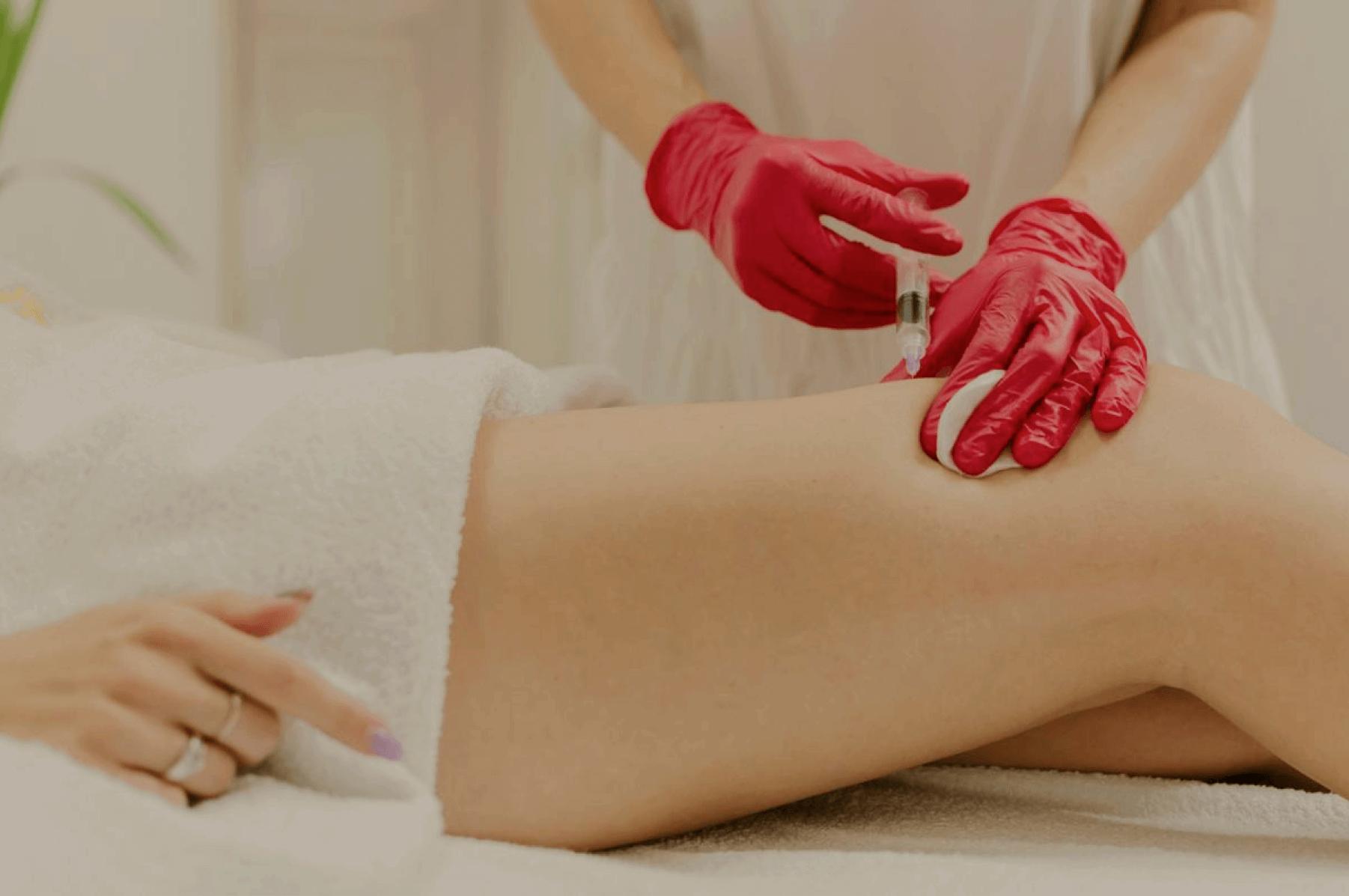 vein removal