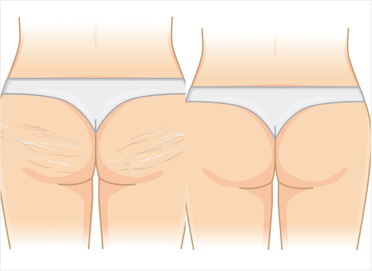 buttocks reduction surgery
