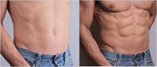 abdominal etching procedure