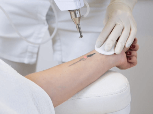 tattoo removal UK