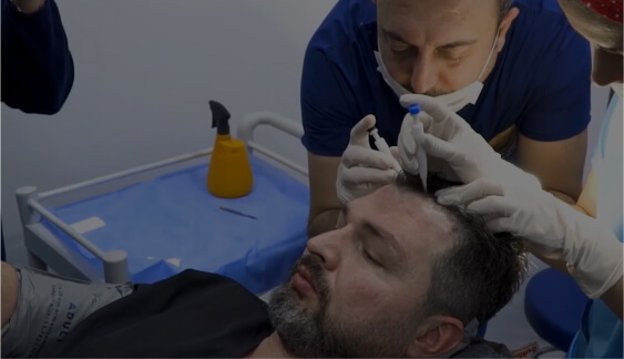 hair loss treatments UK