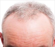 severe hair loss