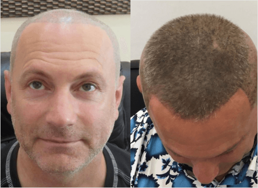 before and after hair loss treatments UK