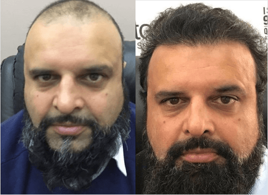 Beard Transplant Before and After