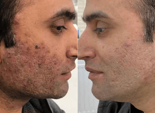 Acne scar laser treatment UK