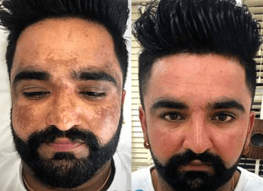 Pigmentation Removal Before and After