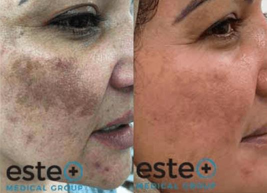 pigmentation treatment UK