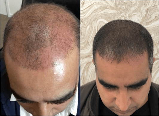 Laser hair regrowth for men