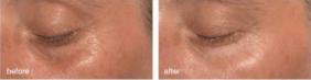 under eye bags treatment