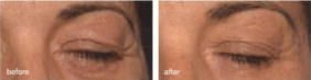 drooping eyelids treatment