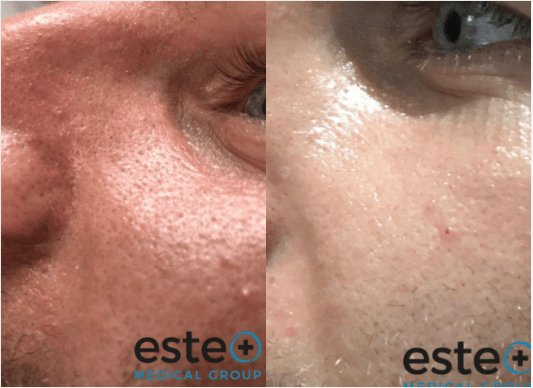 HydraFacial treatment before and after