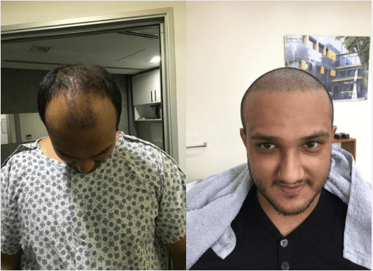male hair transplant