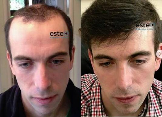 Hair Transplant in Turkey – Este Medical Group!