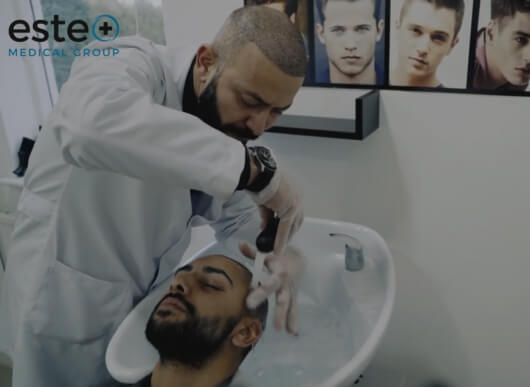 hair transplant aftercare
