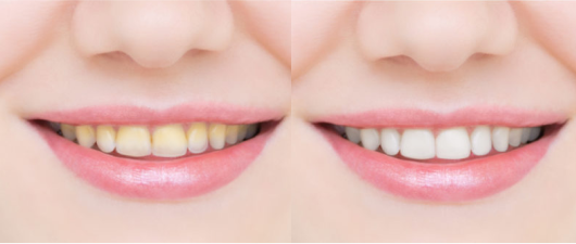 teeth stain removal