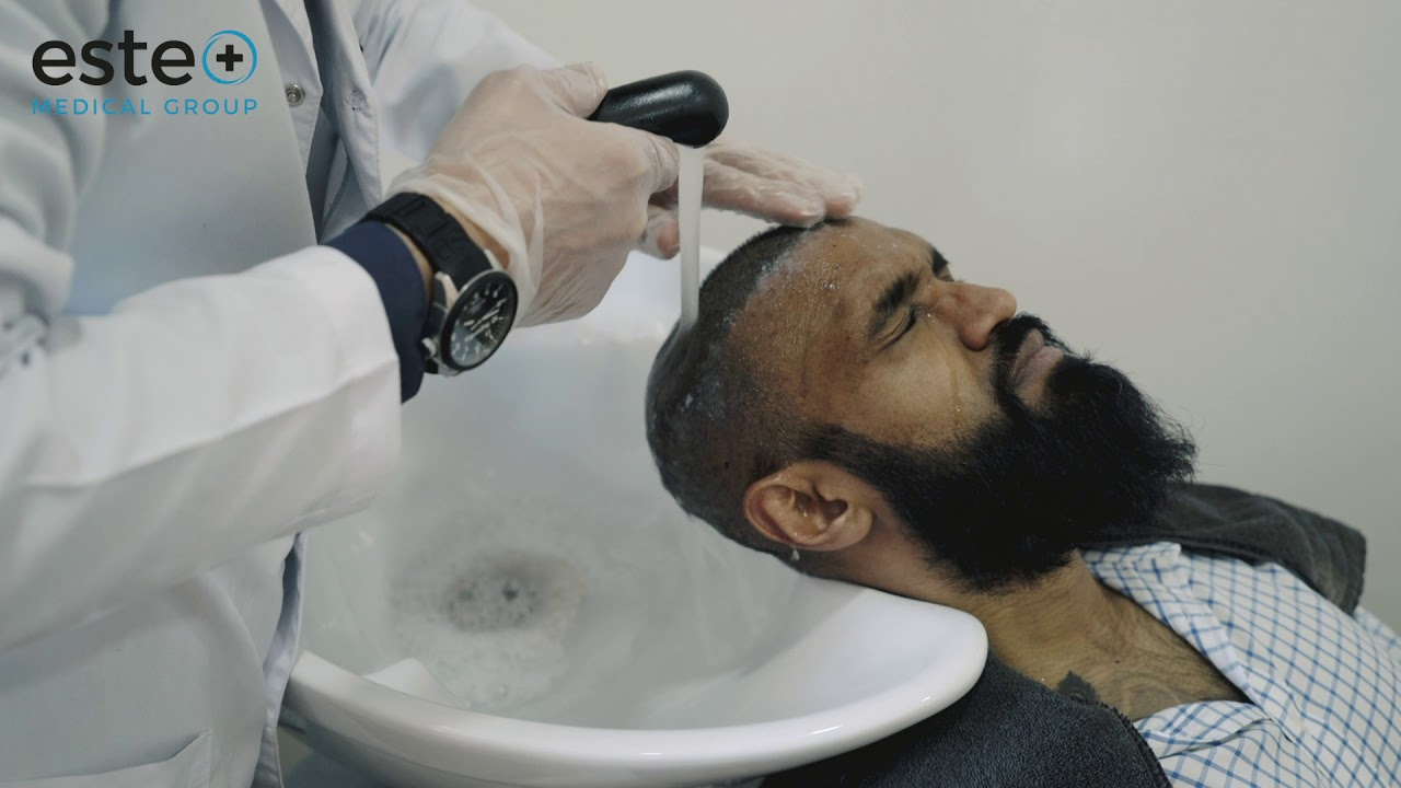 aftercare hair transplant