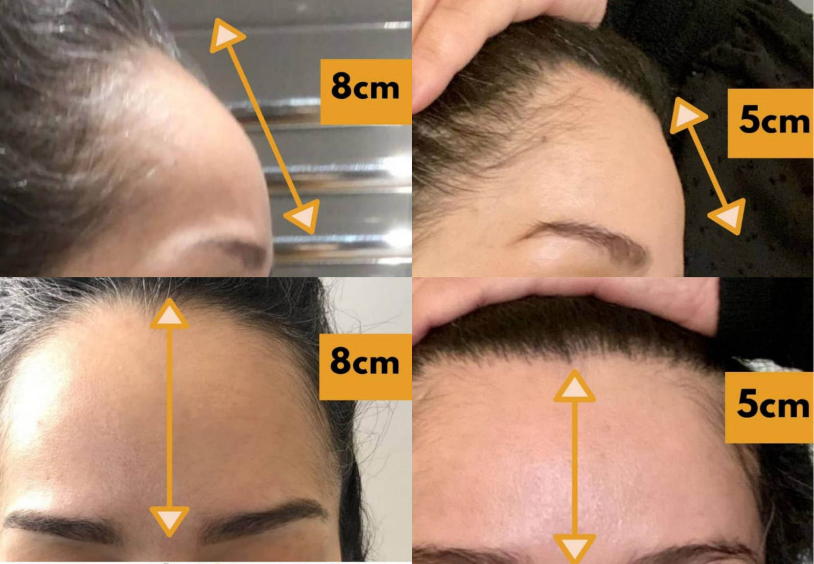 What makes FUE Hair Transplant Procedure the most Successful Technique?