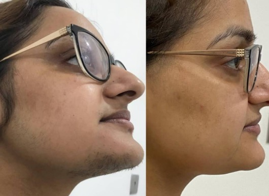 Laser Hair Removal Treatment Before / After