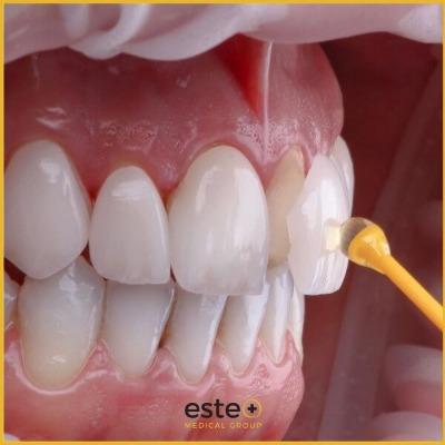 Cosmetic dentistry UK