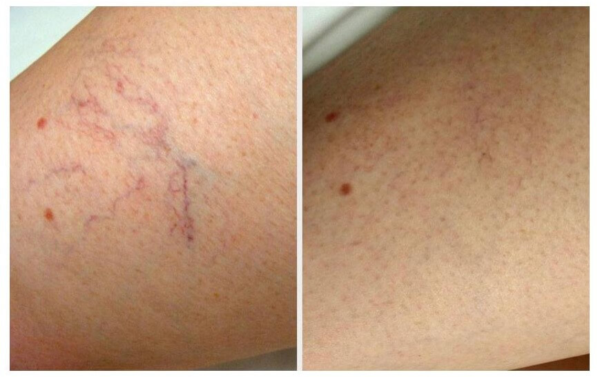 Microsclerotherapy aftercare