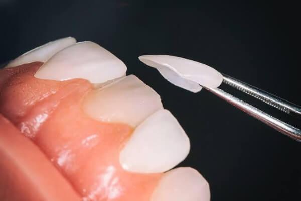Cosmetic Dentistry Turkey