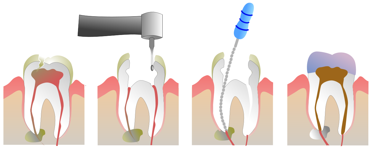 dental infographic