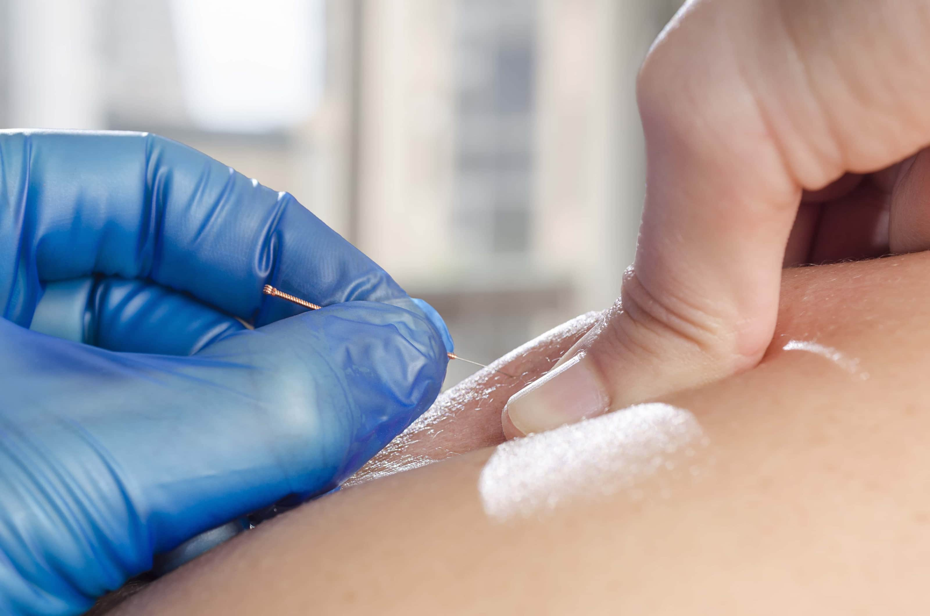 Dry Needling – Level 2 Johannesburg