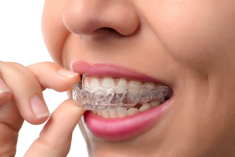 hand holding clear aligners