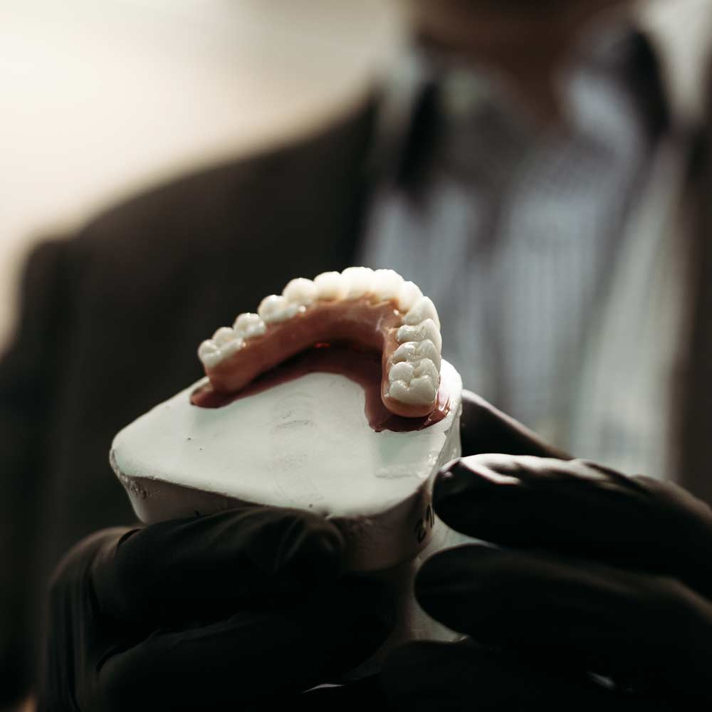Photo of a dental model