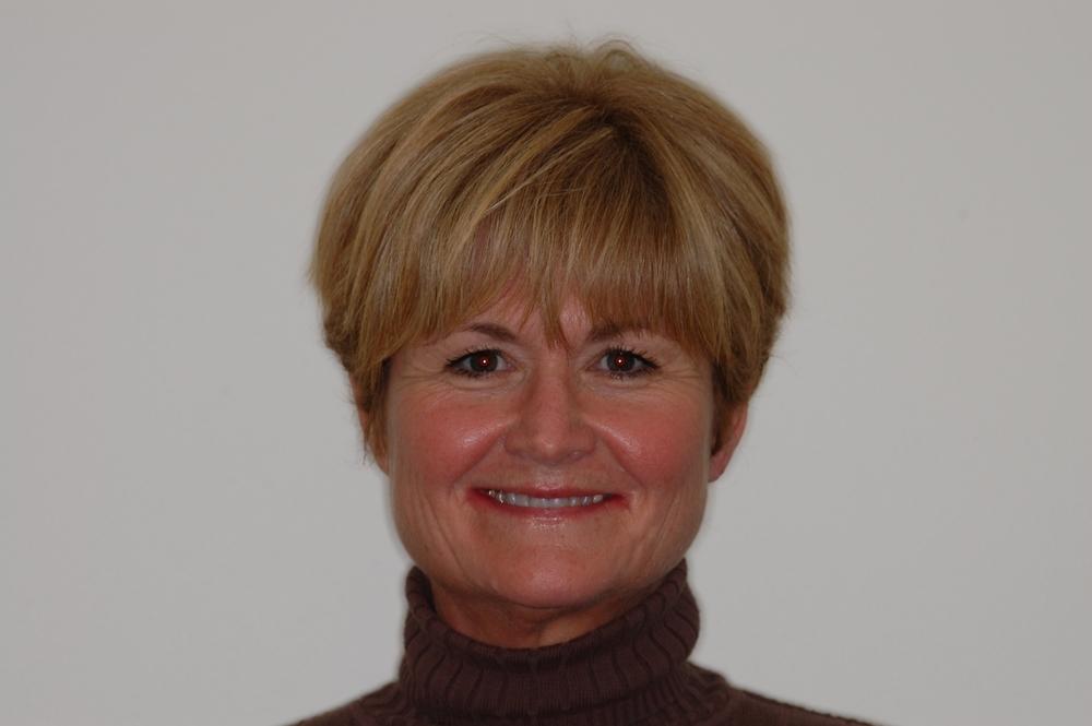 Woman smiling before having veneer implants