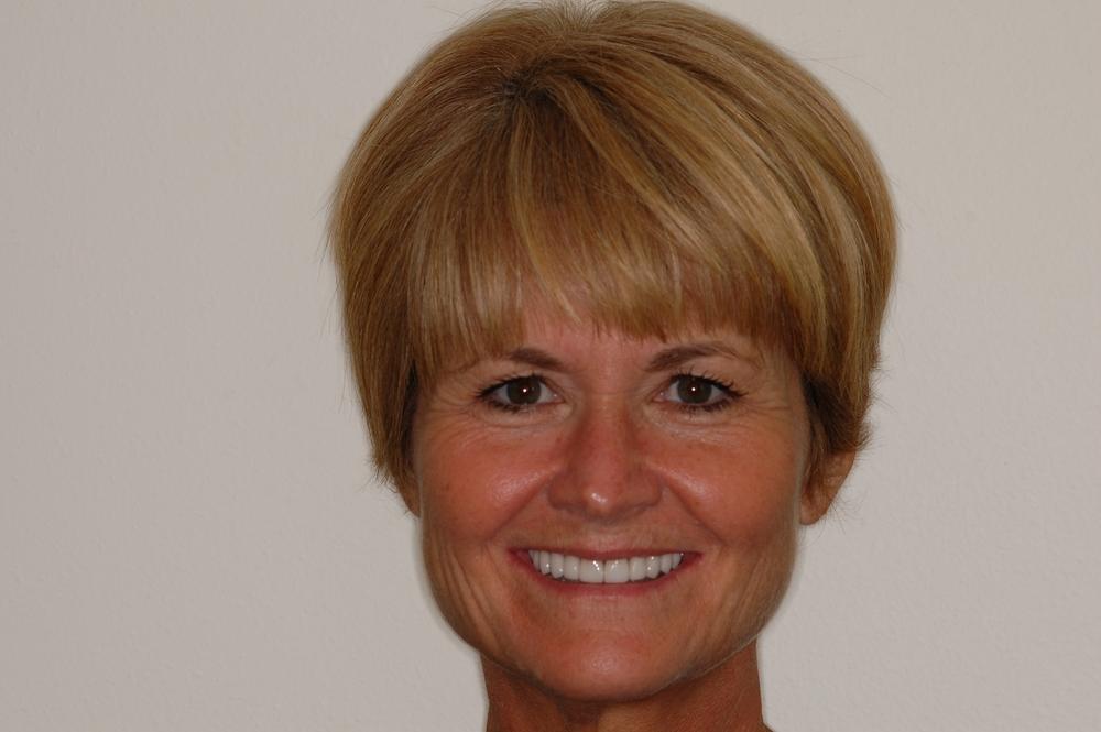 Woman smiling after veneer implants
