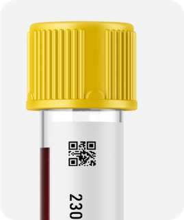 Close up view of biomarker test tube