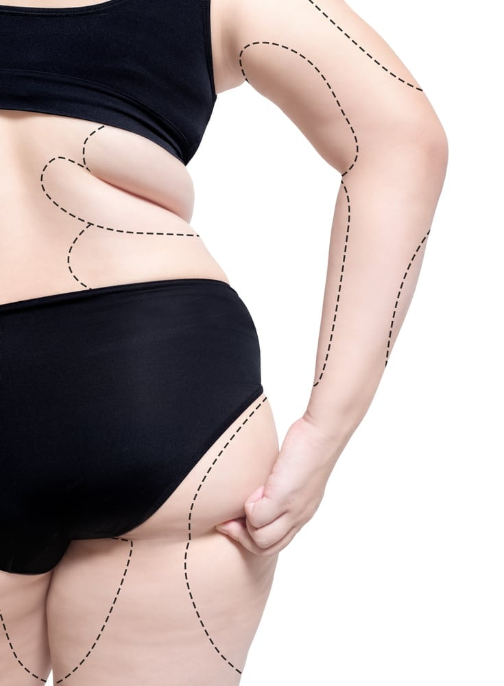 New York Liposuction