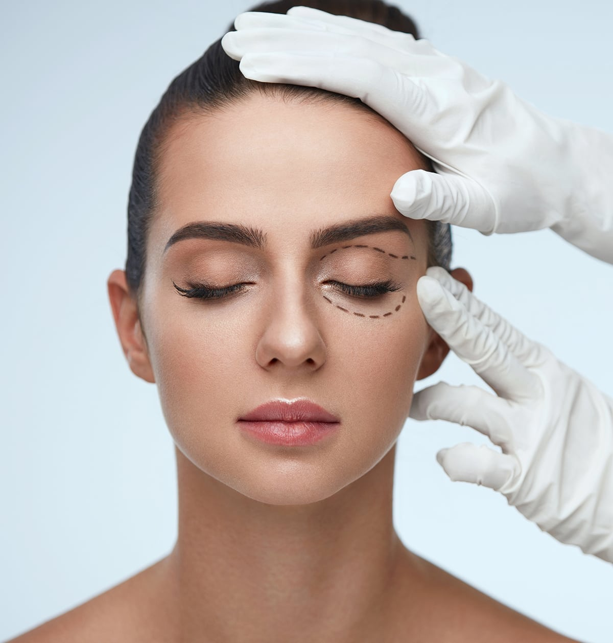 New York Blepharoplasty