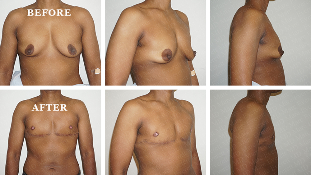 Masculinizing Chest Surgery