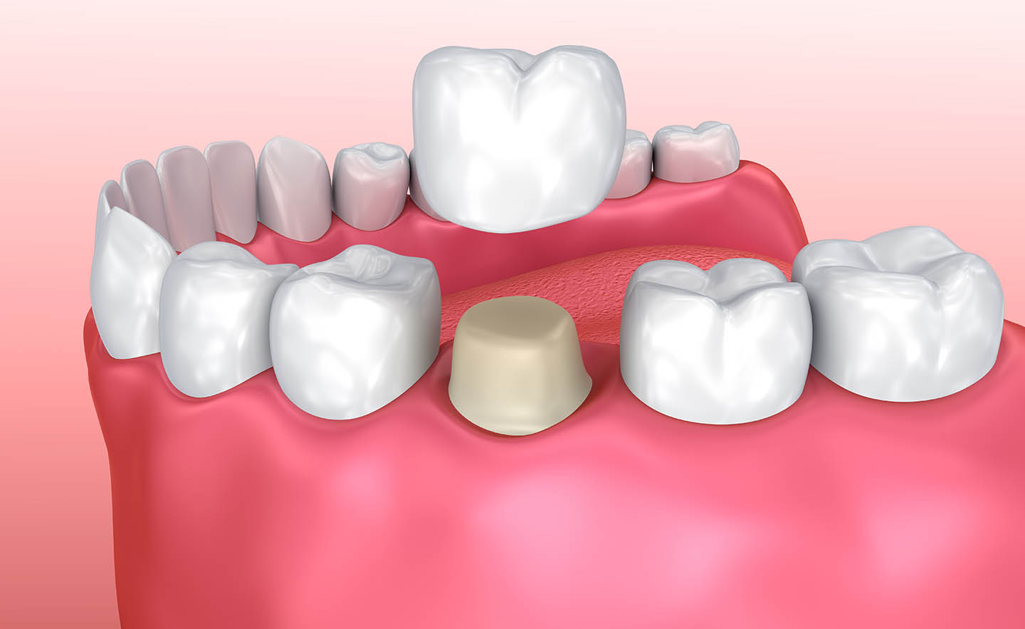 dental crown placement process