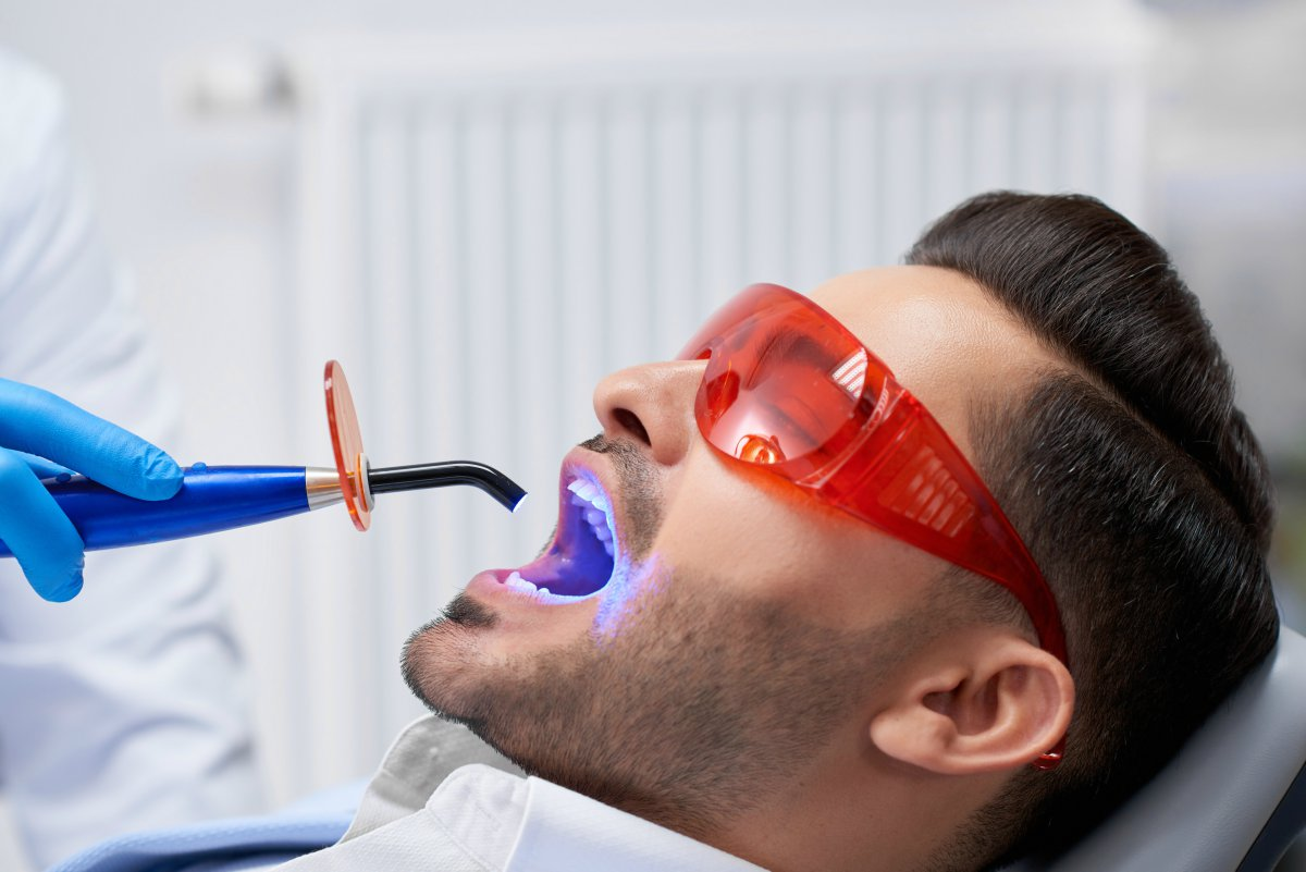 man getting a dental bonding procedure