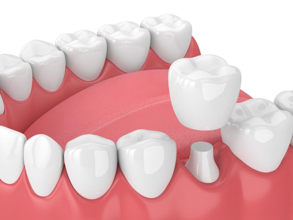 model of dental crowns